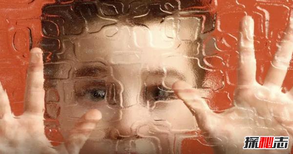 自闭症是如何造成的?自闭症儿童的十大表现特征